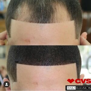 Hairline Enhancment, Receding Hairline for Thicker Fuller Hair by Hair Illusion