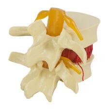 PVC Spine Lumbar Disc Herniation Hospital edical/Biology Teaching Tool Models US