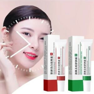 Whitening Freckle Cream Remove Melasma Acne Spot Pigment Melanin Dark Spots Hot