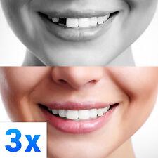 3x Temporary Tooth Repair Kit Temp Dental Repair Replace Missing - Make 36 Teeth