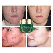 Anti acne Crema trattamento dell'acne viso 20ml, riduce i punti neri e brufoli