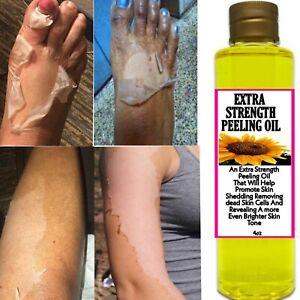 Extra Strength Peeling Oil, Strong peeling oil, Extra strength