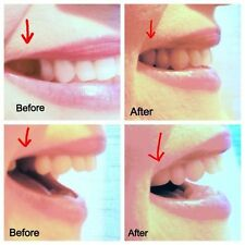 Fix That Gap Fast! Dental Temp Temporary Missing Tooth Repair! HIGHEST Quality!