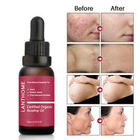 Oil Skin Smoothing Burn Removal Care Stretch Mark Reducers Scar Repair