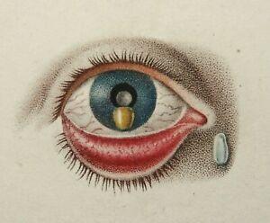 1840 Antique lithograph of HUMAN EYE. Eyeball. Ophthalmology. Surgery. Medicine.