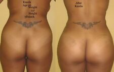 BUTTOX, Enhancement Cream BUTTOX  Enlargement THICK BOOTY COMPARE GET 8 OUNCES