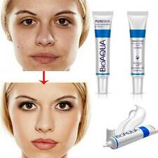Spot Scar Blemish Marks Cream Acne Effective Treatment Face Skin Care Removal P