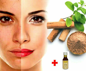 SANDALWOOD POWDER Pure Face Mask Natural Acne Pimples Ayurveda Free With A Honey