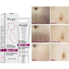 40g Rtopr Mango Remove Pregnancy Scars Acne Cream Stretch Marks Treatment Mater