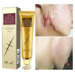 Acne Scar Removal Cream Pimples Stretch Marks Remove Acne Smoothing & Whitening