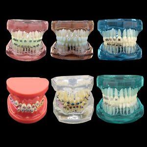 Dental Orthodontic Treatment Demonstration Practice Teeth Model Typodont