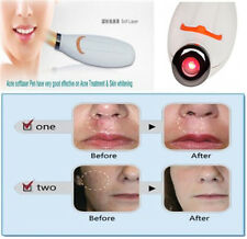 Laser Therapy Pen Acne Scar Blemish Wrinkle Herpes Treatment Device Home Use