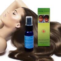 Anti Hair Loss Growth Liquid Spray for Women Men Regrowth Repair Treatment Serum