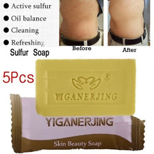 5pcs Bathing Sulfur Soap Anti Acne Seborrheic Antifungal Face Skin Cleaning Care