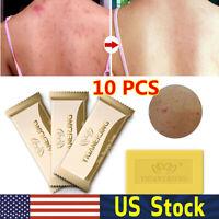 Sulfur Soap oil-control Acne Treatment Blackhead Remover Cleanser Skin Care Lot