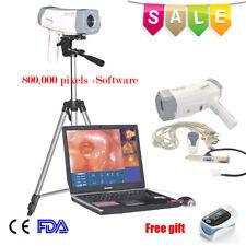 Digital Electrónica Video Colposcopio SONY 800,000 píxeles & Soft Ware y Trípode A +