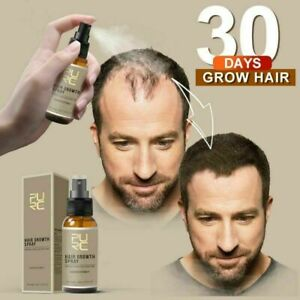 [ PURE ] Natural Hair Growth Ginger Essence Loss Root Regrowth Treatment Spray