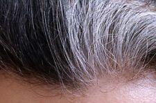 """100g Pseudocatalase """"PC-KUS"""" Hair Serum for Vitiligo/Grey Hair"""