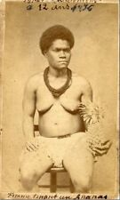 Retirage Photo Copie : Nouvelle Caledonie Noumea Canaques 1876 FEMME Main ANANAS