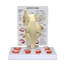 Knee Joint Anatomical Model Meniscus Tears  LFA # 1010  CEM *