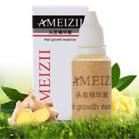 Ameizii Hair Growth Essence Hair Loss Liquid 20Ml Dense Hair Fast Sunbu FO