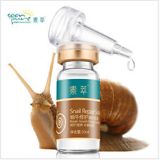 Skin Care Snail Face Repair Serum 10ml Acne Treatment Blackhead Remover
