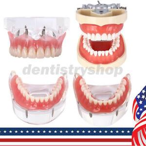 USPS Kilgore NISSIN 200 Type Typodont Model / Implant Denture Restoration Model