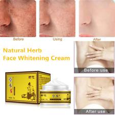 Dark Spot Corrector Skin Whitening Fade Cream Face Lightening Blemish Removal