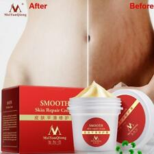 Quality Smooth Body Cream Stretch Marks Scar Removal Maternity Skin Repair Care