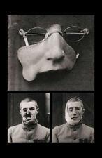 Enmarcado impresión prótesis cara de reemplazo de la época victoriana (médico Rarezas Art)
