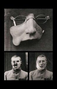 Framed Print - Victorian Era Prosthetics Face Replacement (Medical Oddities Art)