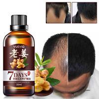 Fast Hair Growth Dense Regrowth Ginger Serum Oil Anti Loss Treatment Essence USA