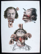 1866,BOURGERY HAND COLOR FOLIO SURGICAL ANATOMY RISING OF THE LOWER MANDIBLE X88