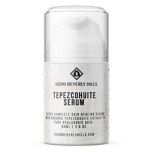 Original Tepezcohuite Serum | Organic Tepezcohuite, Hyaluronic Acid  2oz