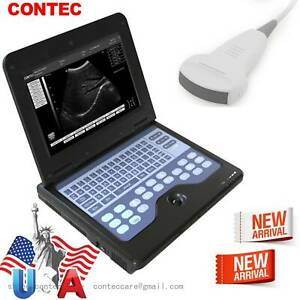 FDA CECMS600P2 Portable Ultrasound Scanner Digital Laptop Machine,3.5Mhz Convex