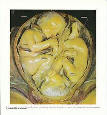 Publicité ancienne corps humain grossesse gémellaire issue de magazine