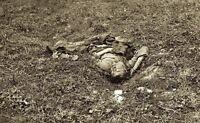 Battle of Antietam - Lone Dead Confederate Soldier 8x10 Civil War Photo 1862