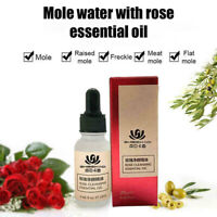 20ml Serum Mole Skin Removal Solution Painless Women Organic Tag Solutions