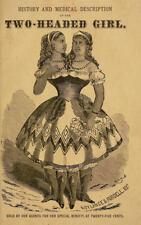 Framed Print - Victorian Freak Show Poster Two Headed Girl (Human Oddities Art)