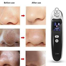 Electric Acne Blackhead Vacuum Cleaner Tools Nose Face Deep Cleaning Skin 6*Tip