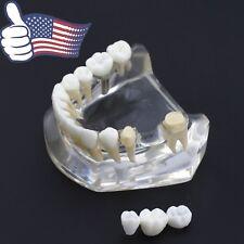 USA Dental Implant Teeth Model Acrylic Inferior Lower Jaw with Bridge Crown 2010