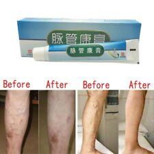 Hot Medical Varicose Veins Treatment Leg Acid Bilges Itching Bad Lumps Cream 20g
