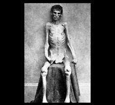 Shocking Escaped Union Prisoner PHOTO Civil War Soldier POW Prison Survivor