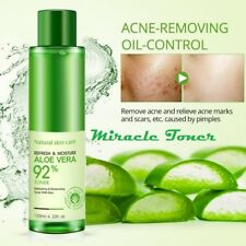 Miracle Toner - Aloe Vera Face Toner for Oil Control