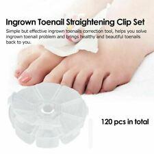 120X Ingrown Toe Nail Correction Manicure Sticker Pedicure Foot Care Brace Patch