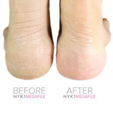 Pedicure Rasp Dry Hard Skin Remover BEST SELLING Foot File GENUINE MEGAFILE
