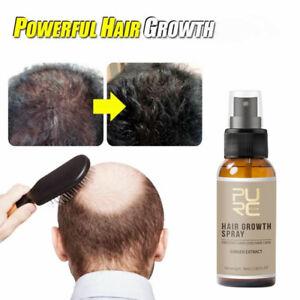 Anti Hair Loss Growth Liquid Spray Regrowth Repair Treatment Serum For Women Men