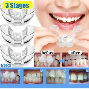 Orthodontic Braces Appliance Dental Braces Silicone Alignment Trainer Teeth Reta