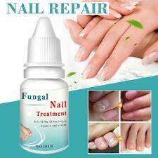 Anti Nagelpilz - 10ml - Nagelpflege & Neuaufbau - Behandlung für Hand & Fuß