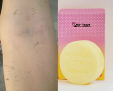 Ho-Yeon Ginseng+Snail+Gluta Arbutin+AHA Soap Whitening Peel Scurf Dark Spot Skin